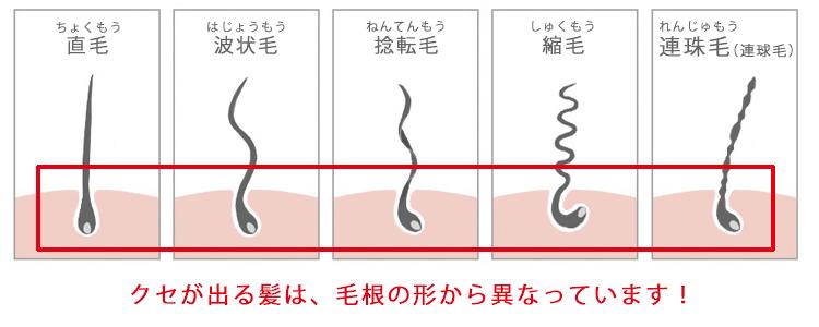 直毛とくせ毛(波状毛・捻転毛・縮毛・連珠毛)を比べると、毛穴の形がすでに異なります